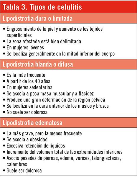 ESPECIAL_ESTACIONAL_TAB_3