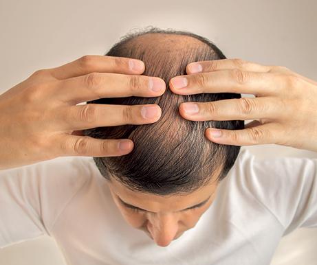 EF552 profesion caida cabello 2
