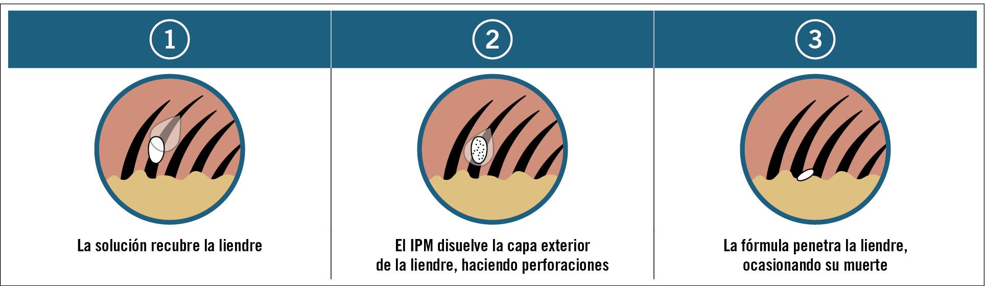 21 EF587 PROFESION pediculosis Figura 2