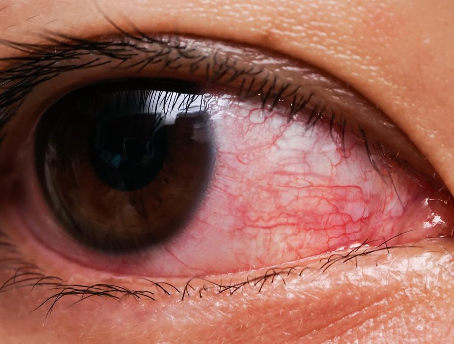 16 EF597 PROFESION abordaje del cuidado ocular 2